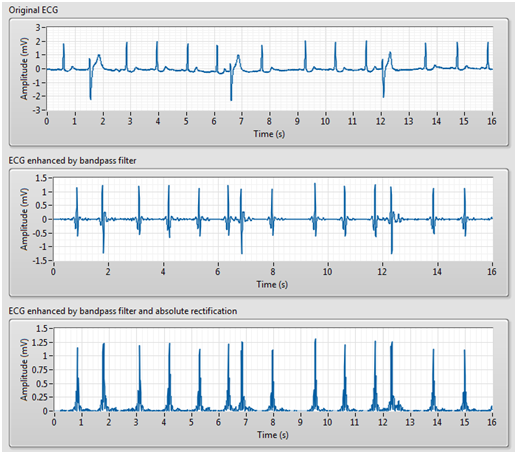 LabVIEW for ECG Signal Processing - National Instruments
